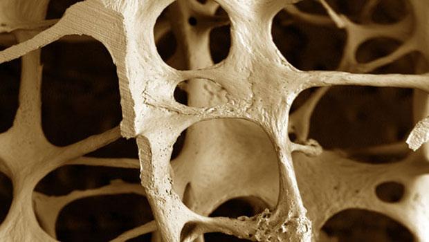 osteoporosi2